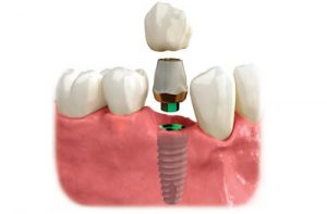 3 parts of a dental implant