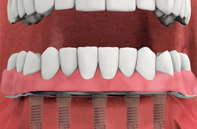 Full Arch Teeth Replacement In Greenwich