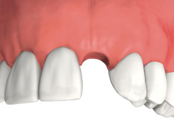 Restoring A Knocked Out Tooth In Greenwich