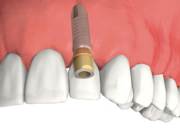Dental Implants – Strong And Stable Replacement Teeth