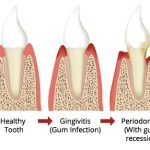 Progressive gum disease