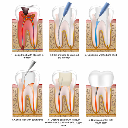 Root Canal Treatment in Greenwich at Confidental Clinic